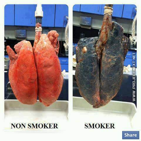 Non Smoker VS Smoker - Healthy Eating Fitness Weight Smoking
